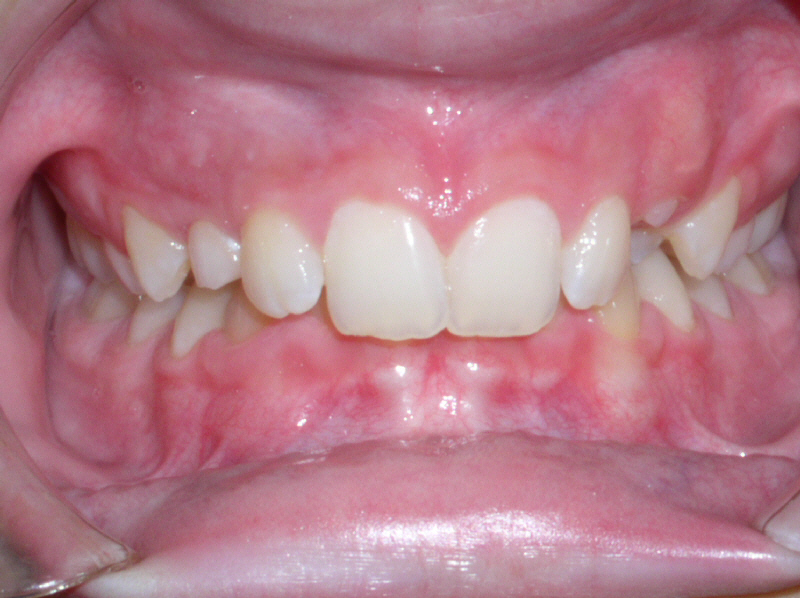 Image Gallery Overbite Teeth