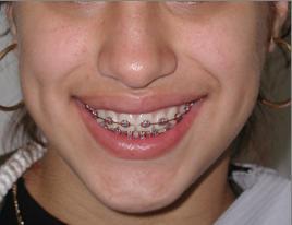 Lin Hu Orthodontist Serving Flushing Queens Manhattan